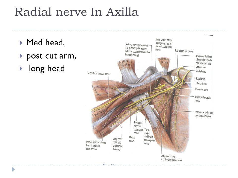 Radial nerve In Axilla Med head, post cut arm, long head