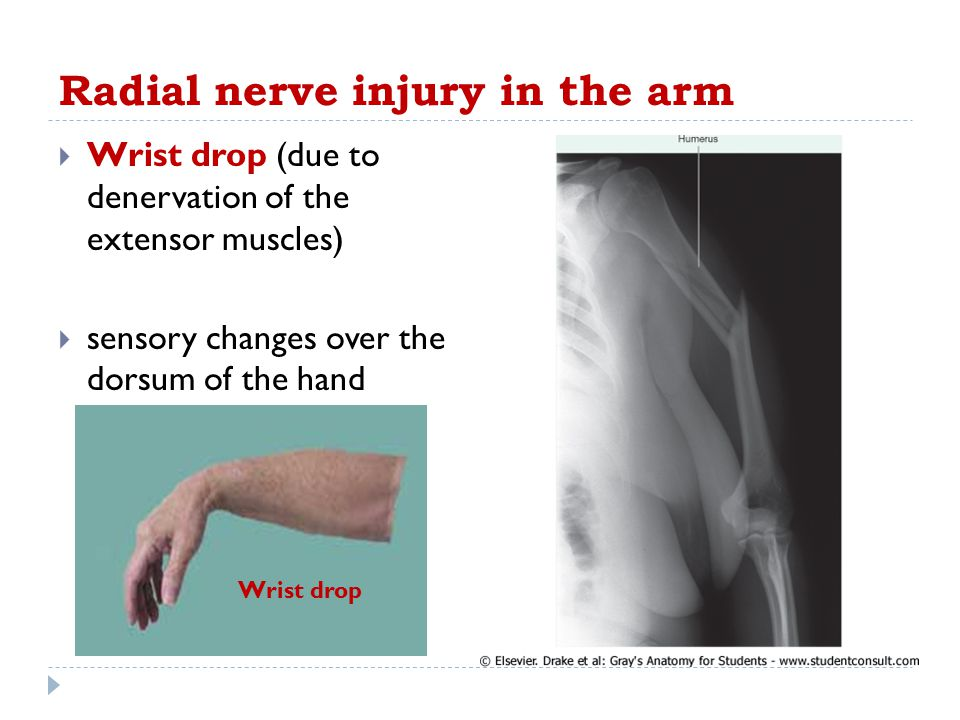 Radial nerve injury in the arm