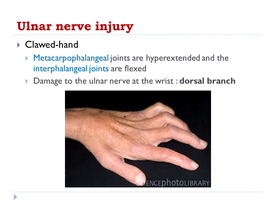 Ulnar nerve injury Clawed-hand