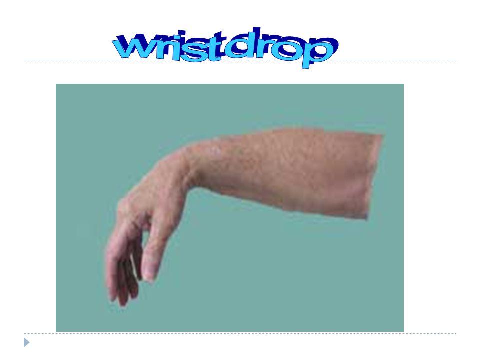 wrist drop