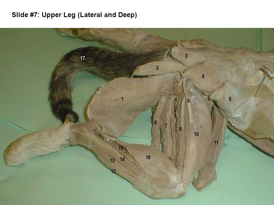 Slide #7: Upper Leg (Lateral and Deep)