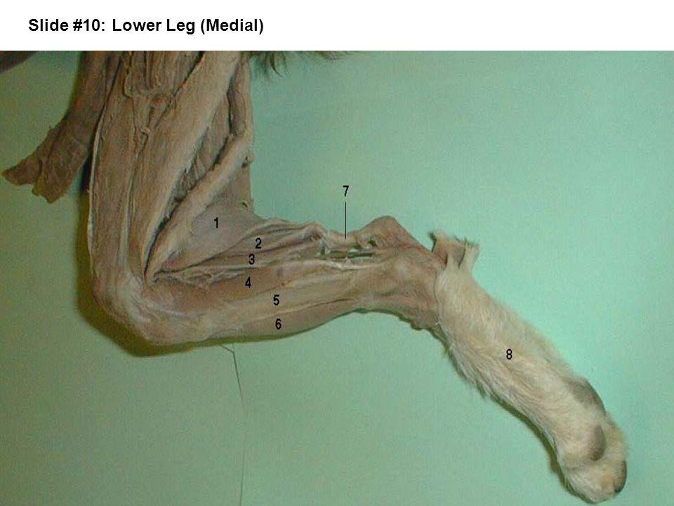 Slide #10: Lower Leg (Medial)