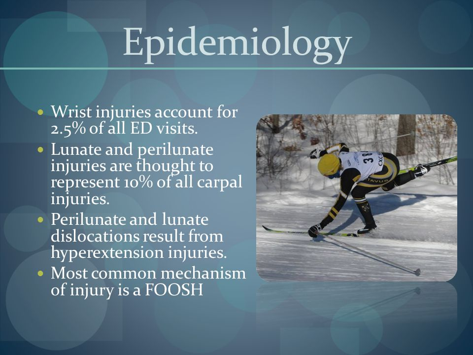 Epidemiology Wrist injuries account for 2.5% of all ED visits.