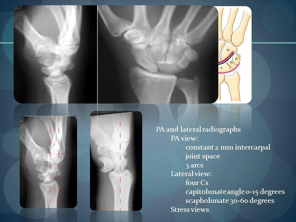 PA and lateral radiographs