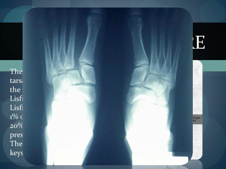 Lisfranc Fracture The articulation between the tarsal and metatarsal bones in the foot is named after Jaques Lisfranc.