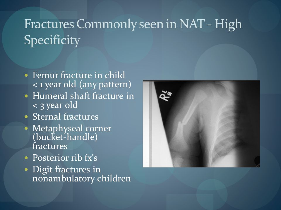 Fractures Commonly seen in NAT - High Specificity