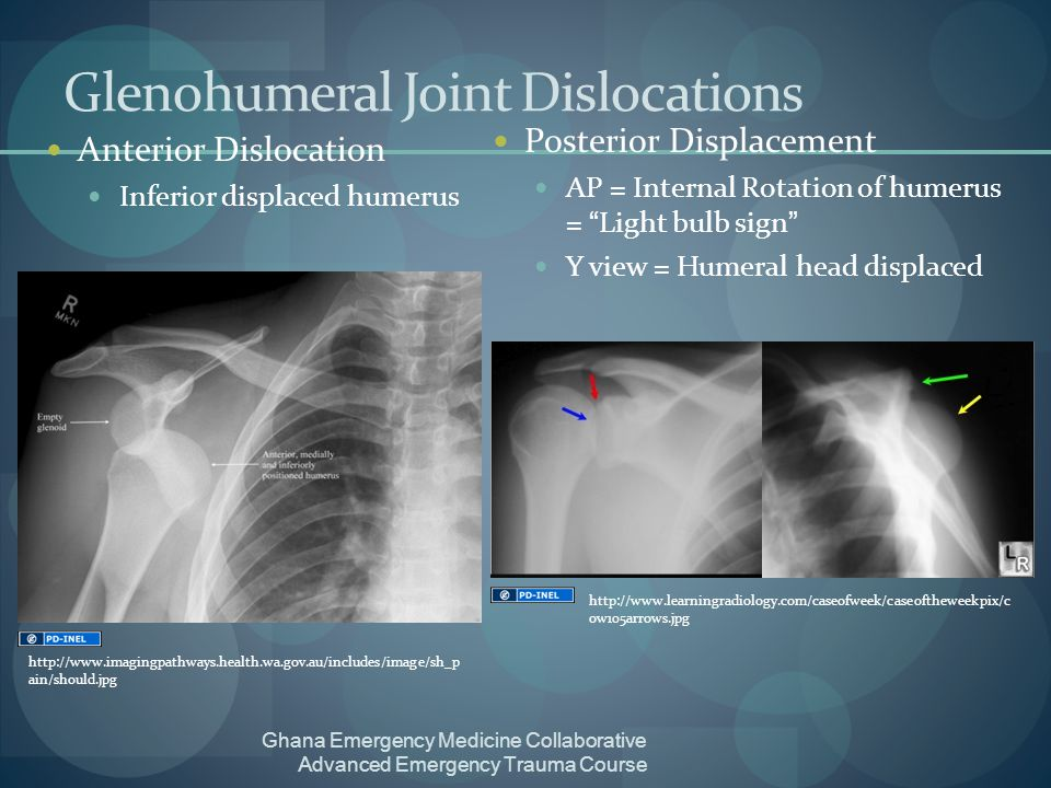 Glenohumeral Joint Dislocations