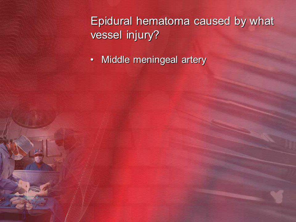 Epidural hematoma caused by what vessel injury