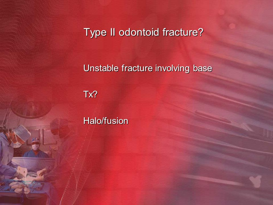 Type II odontoid fracture