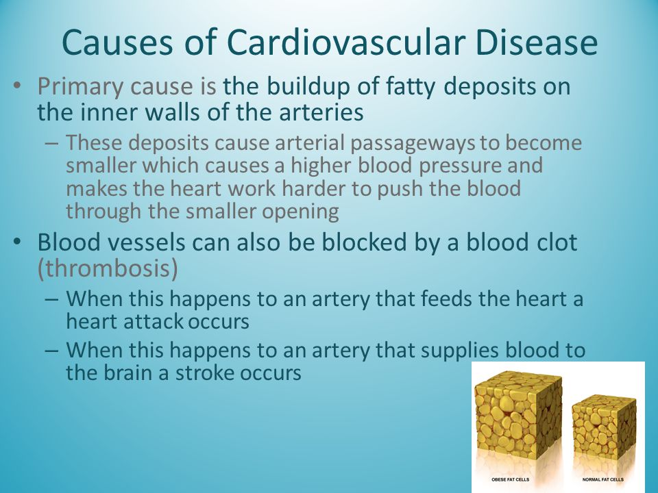 Causes of Cardiovascular Disease