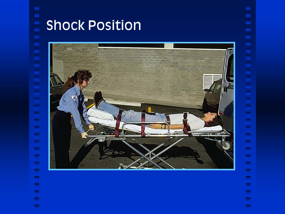 Shock Position 1