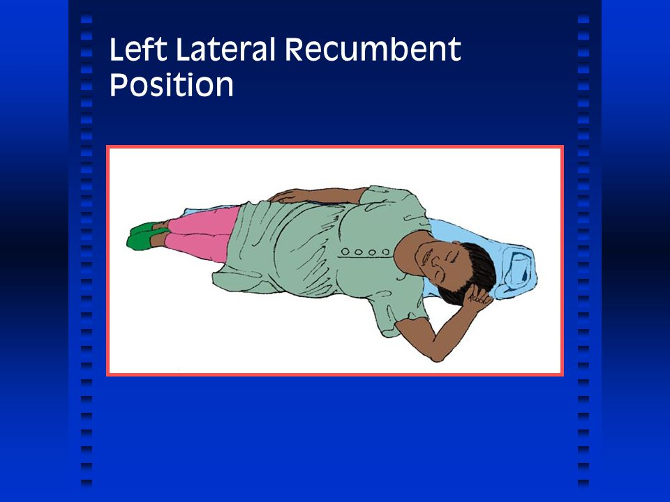 lateral recumbent position - photo #38