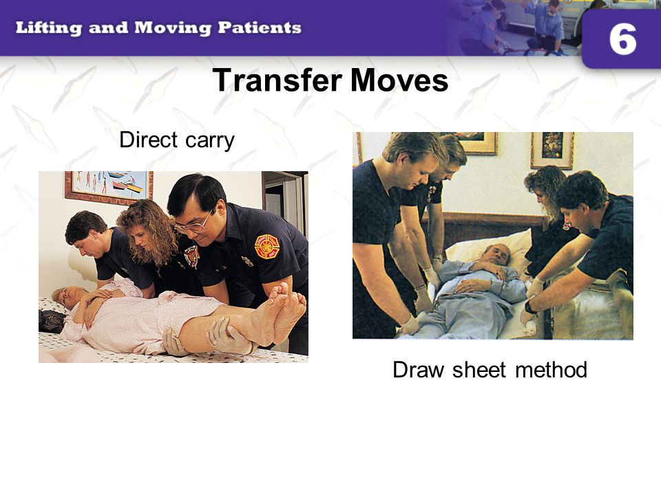 Transfer Moves Direct carry Draw sheet method