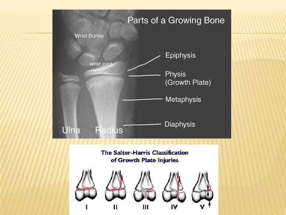 Salter Harris Fracture Classification