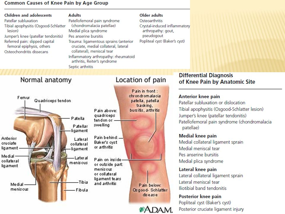 OCD occurs when a loose piece of bone or cartilage partially (or fully) separates from the end of the bone, often because of a loss of blood supply (osteonecrosis) and decalcification of the trabecular bone matrix.
