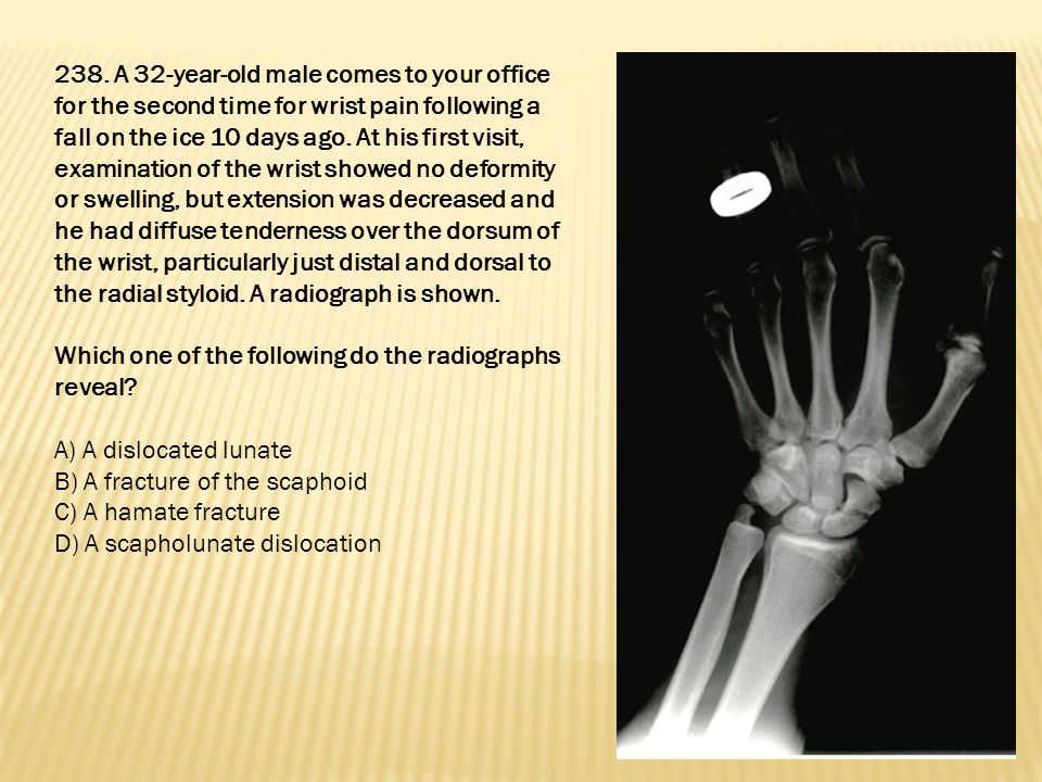 238. A 32-year-old male comes to your office for the second time for wrist pain following a fall on the ice 10 days ago. At his first visit, examination of the wrist showed no deformity or swelling, but extension was decreased and he had diffuse tenderness over the dorsum of the wrist, particularly just distal and dorsal to the radial styloid. A radiograph is shown.