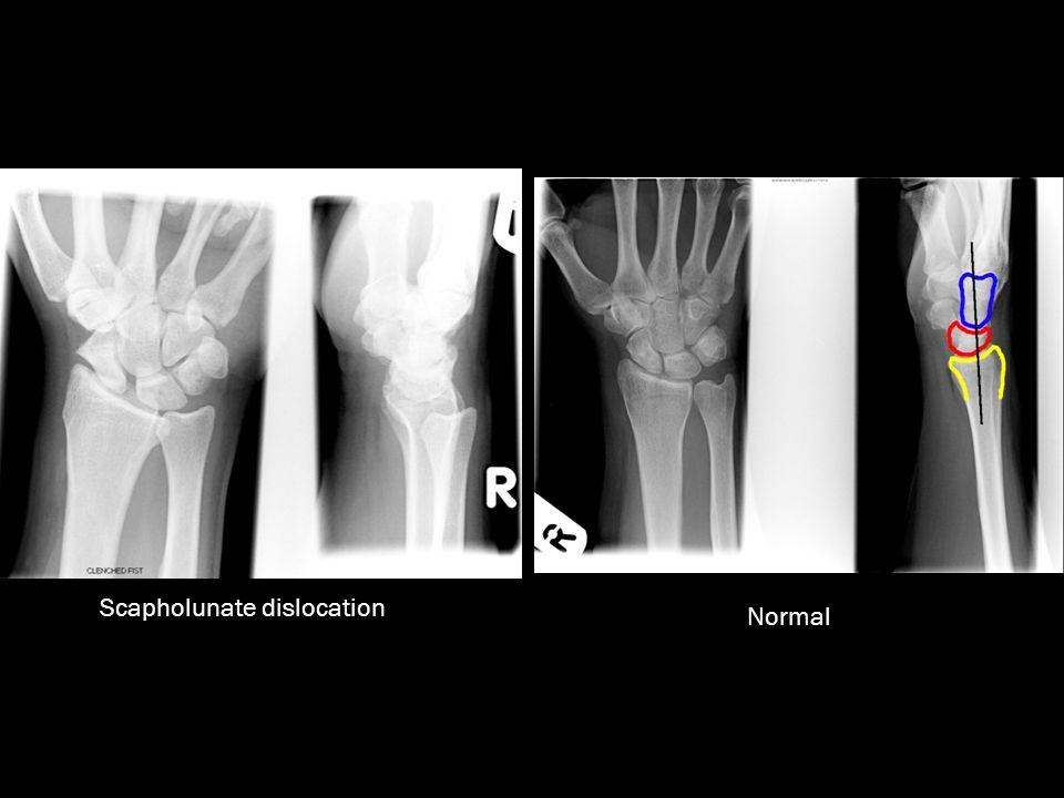 Scapholunate dislocation