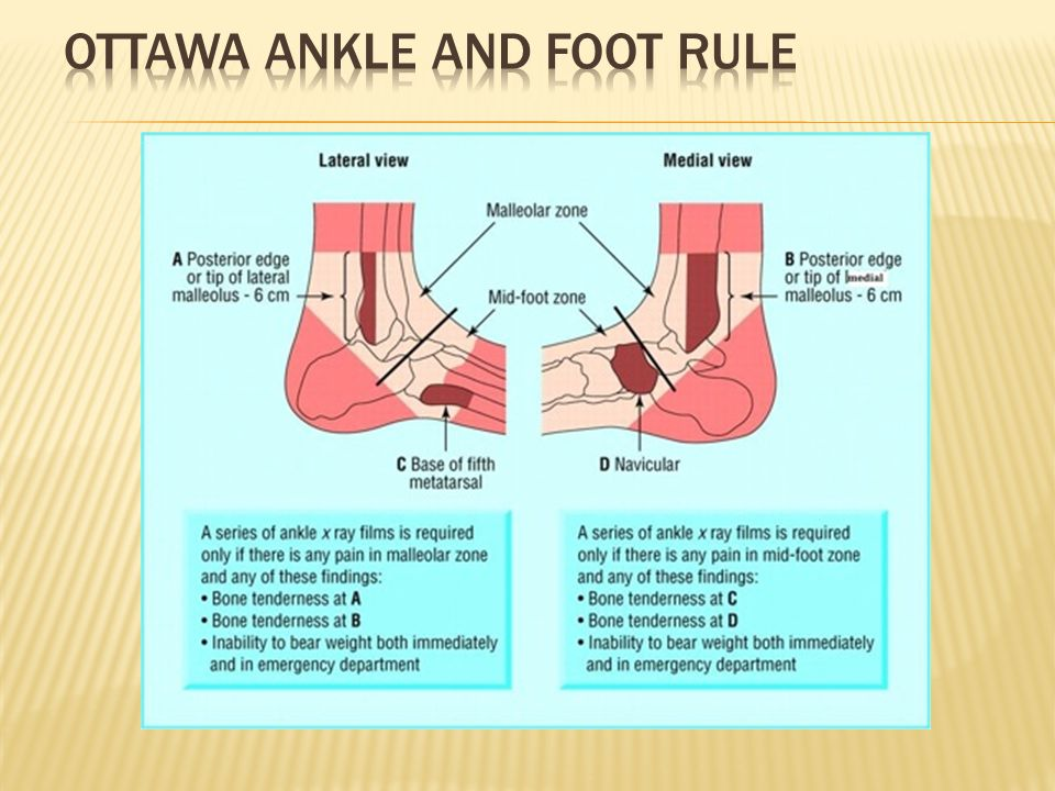 Ottawa Ankle and Foot Rule
