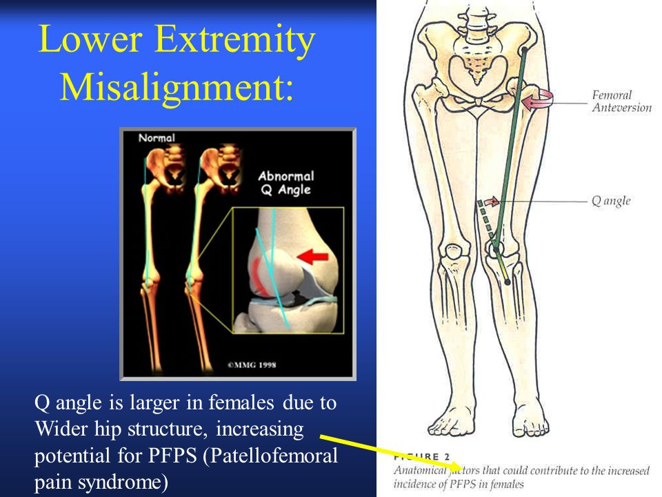 Lower Extremity Misalignment: