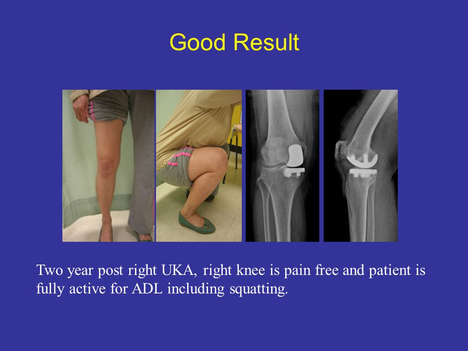 Good Result Two year post right UKA, right knee is pain free and patient is.