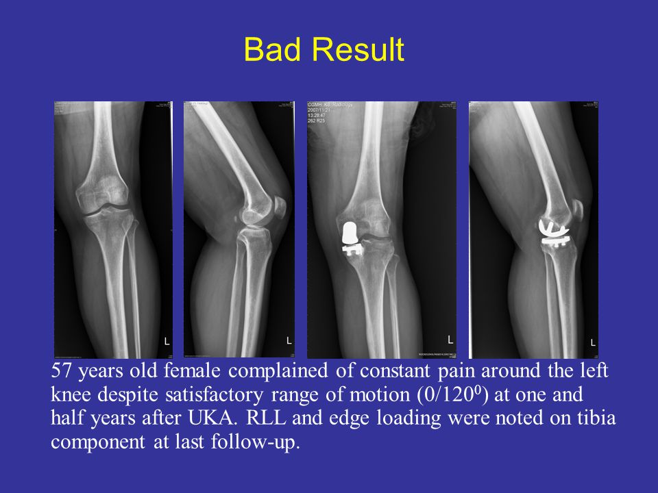 Bad Result 57 years old female complained of constant pain around the left.