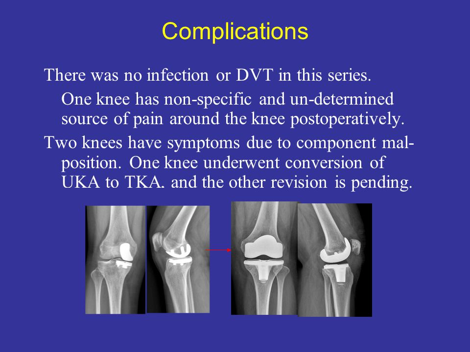 Complications There was no infection or DVT in this series.
