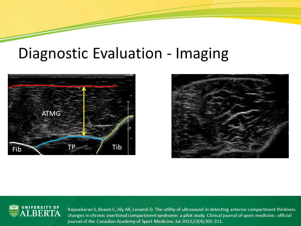 Diagnostic Evaluation - Imaging