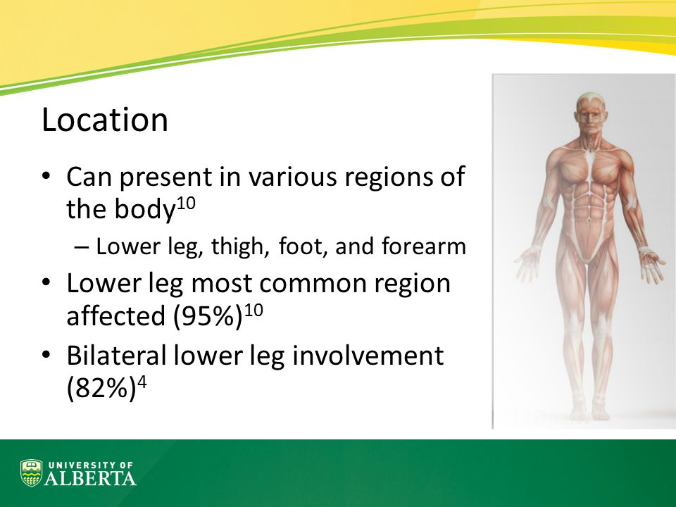 Location Can present in various regions of the body10