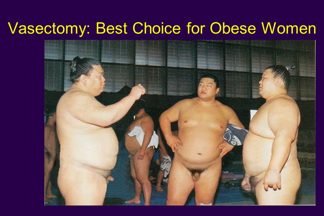 Vasectomy: Best Choice for Obese Women
