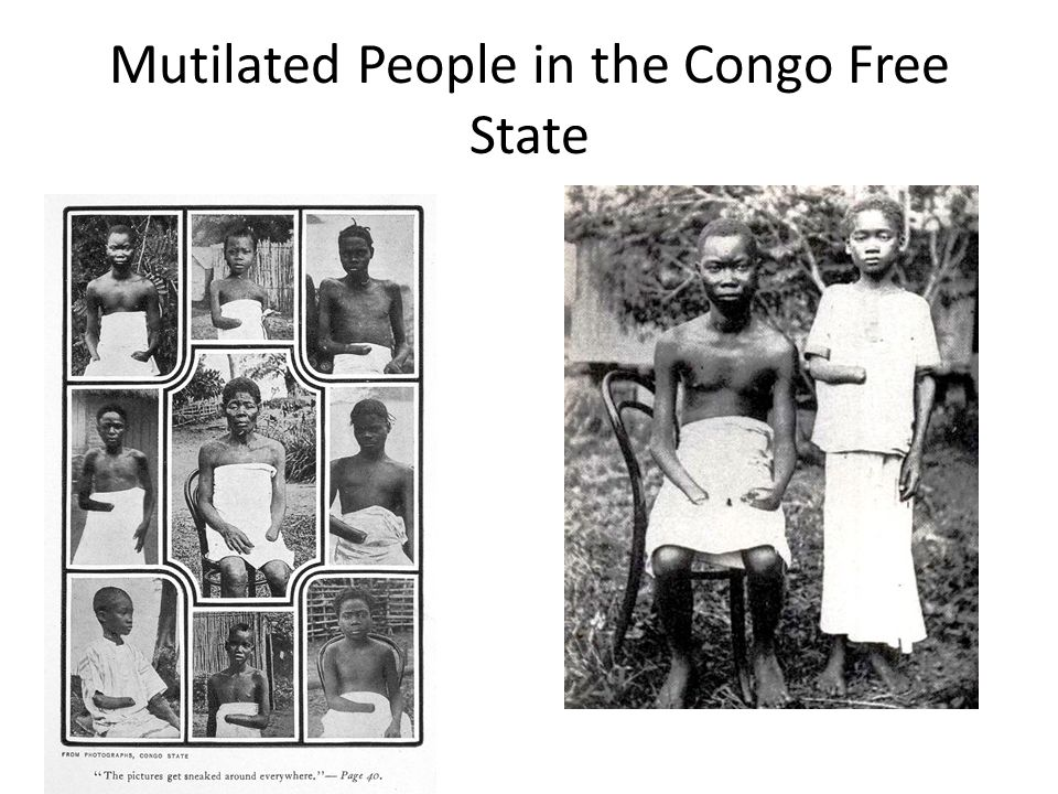 Mutilated People in the Congo Free State