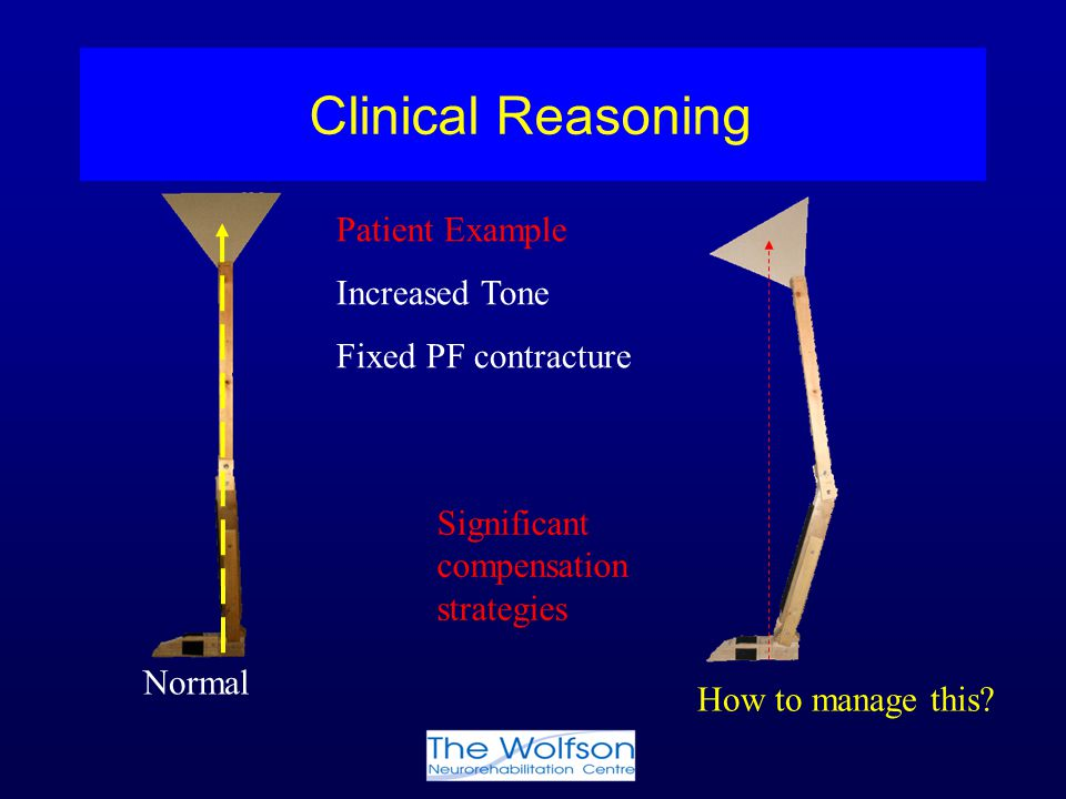 Clinical Reasoning Patient Example Increased Tone Fixed PF contracture