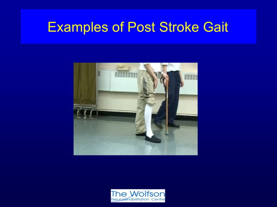 Examples of Post Stroke Gait
