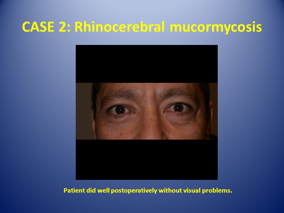 CASE 2: Rhinocerebral mucormycosis