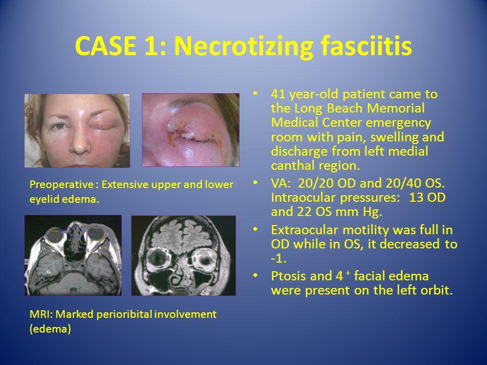 CASE 1: Necrotizing fasciitis
