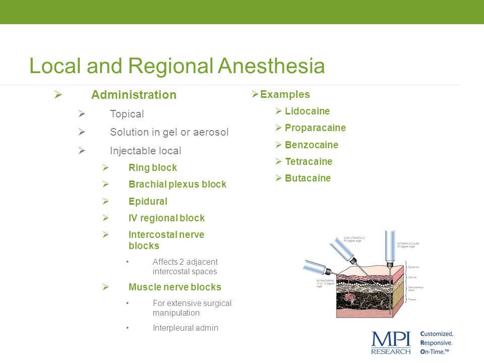 Local and Regional Anesthesia