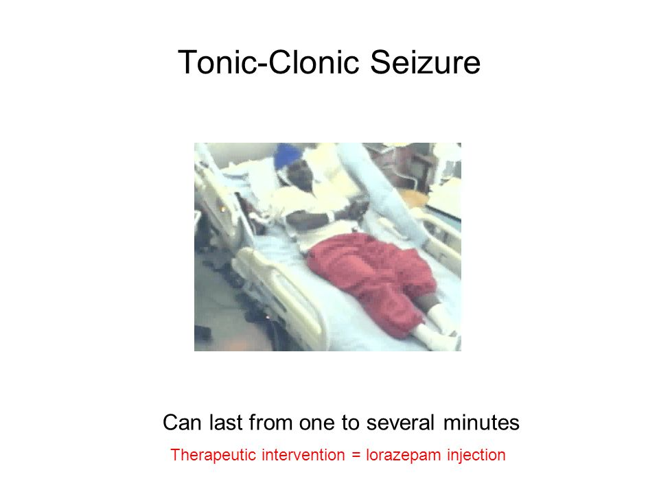 Tonic-Clonic Seizure Can last from one to several minutes