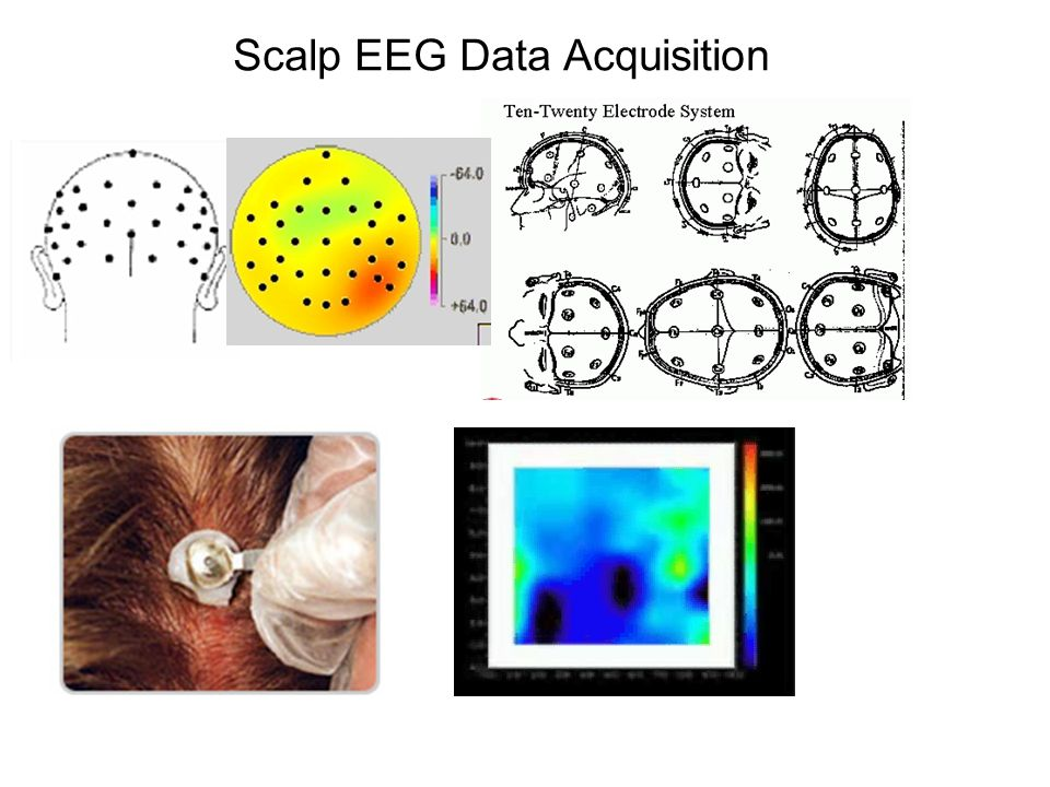 Scalp EEG Data Acquisition