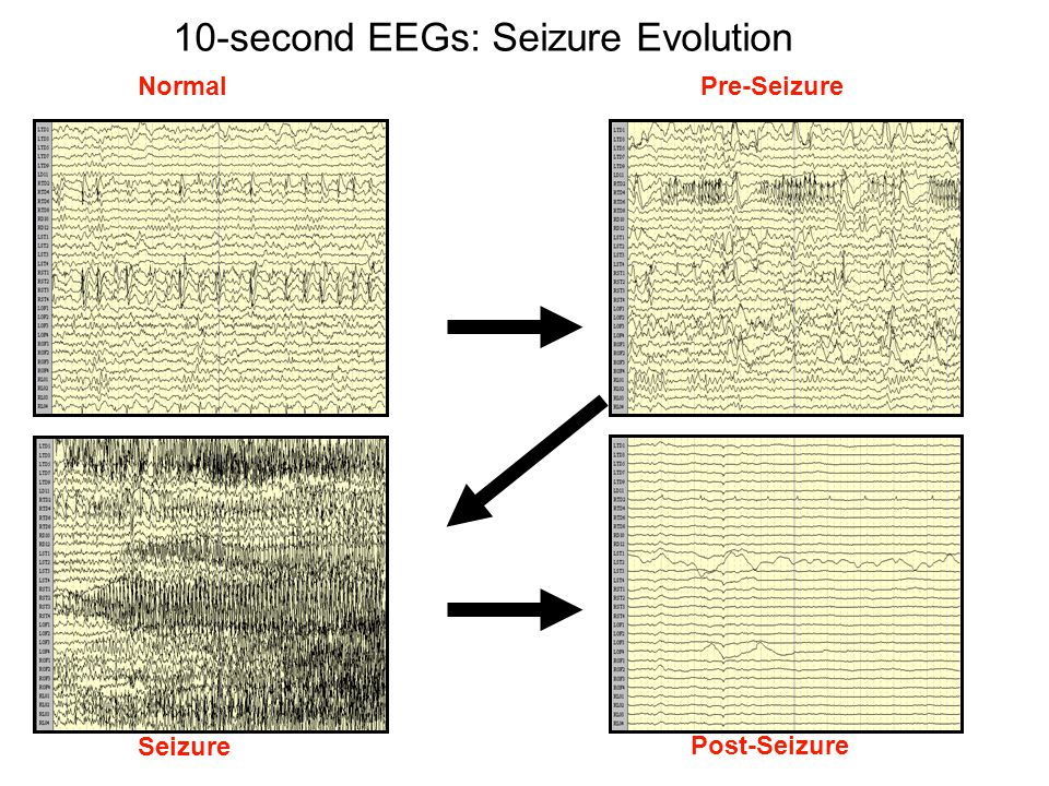 10-second EEGs: Seizure Evolution