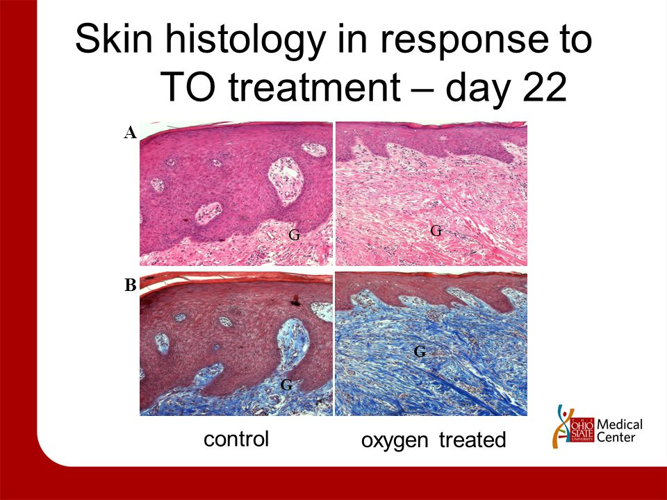 Skin histology in response to TO treatment – day 22