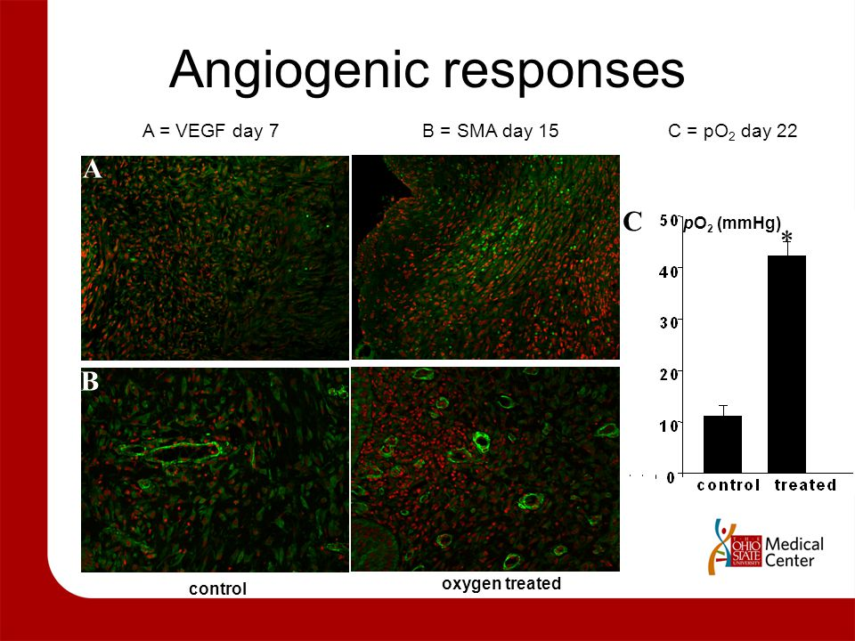 Angiogenic responses A C * B A = VEGF day 7 B = SMA day 15