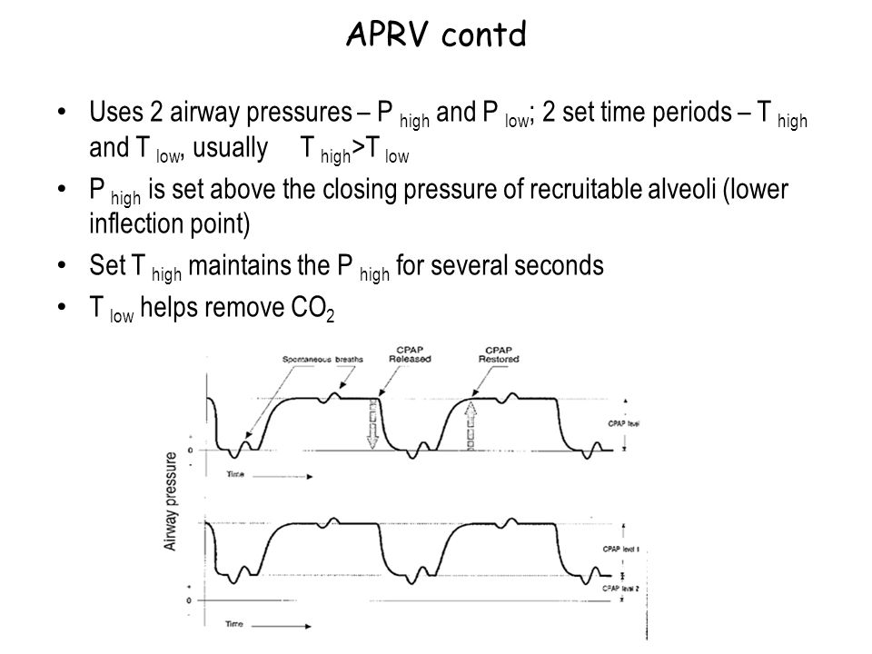 APRV contd Uses 2 airway pressures – P high and P low; 2 set time periods – T high and T low, usually T high>T low.