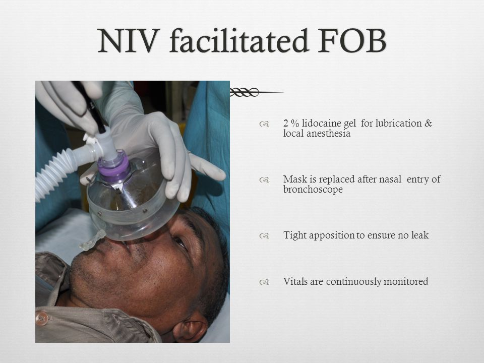 NIV facilitated FOB 2 % lidocaine gel for lubrication & local anesthesia. Mask is replaced after nasal entry of bronchoscope.