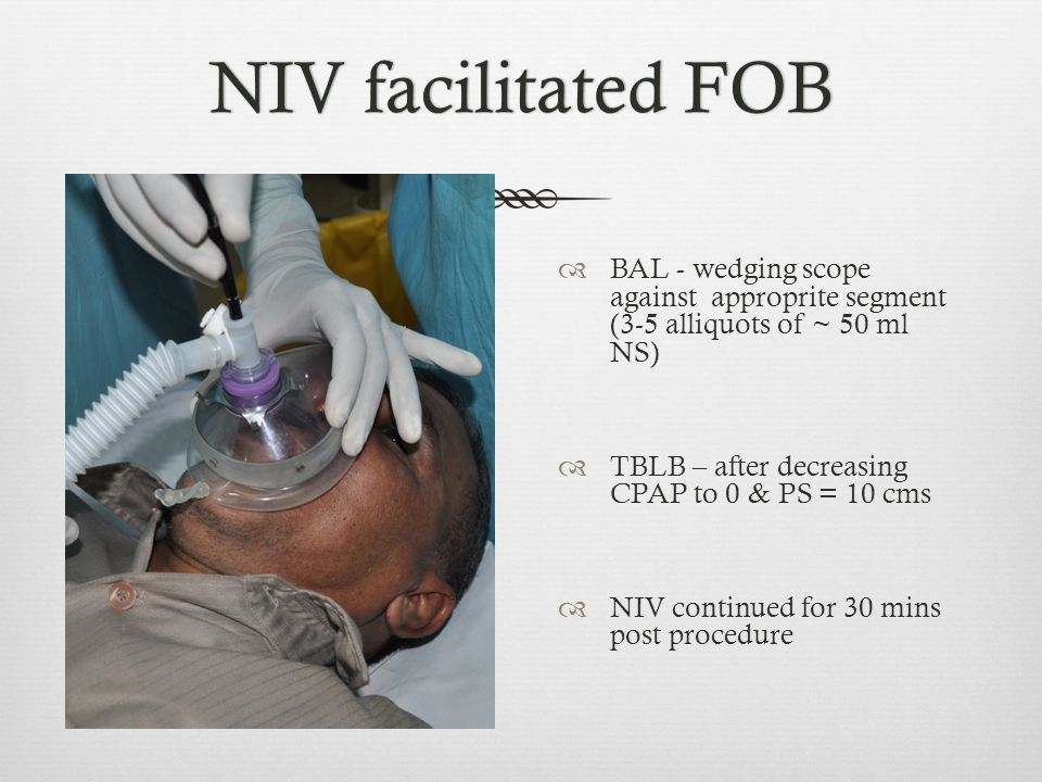 NIV facilitated FOB BAL - wedging scope against approprite segment (3-5 alliquots of ~ 50 ml NS)
