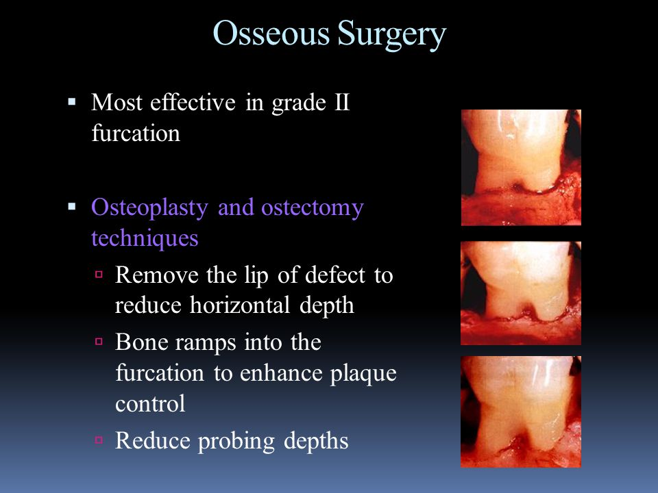 Osseous Surgery Most effective in grade II furcation