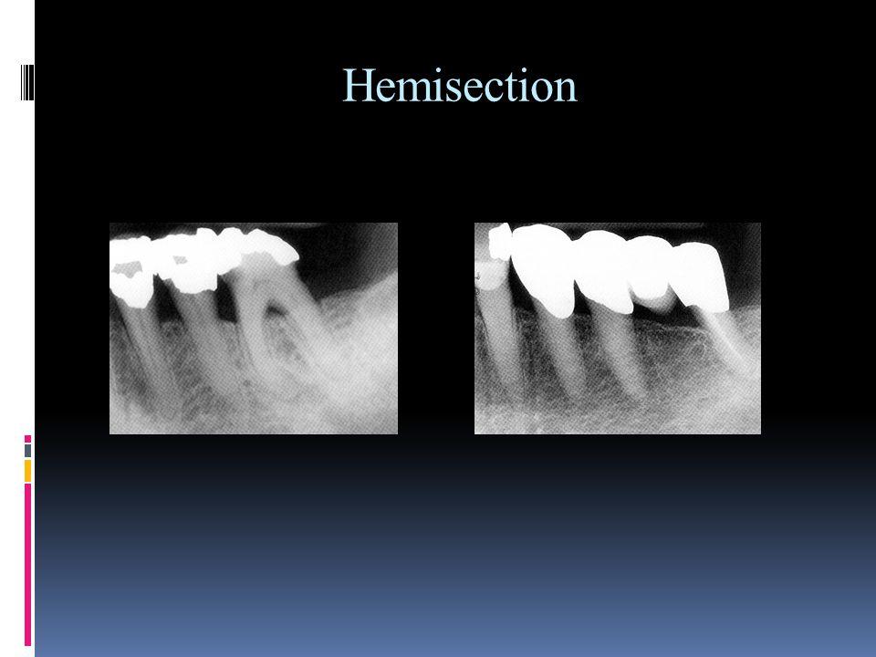 Hemisection
