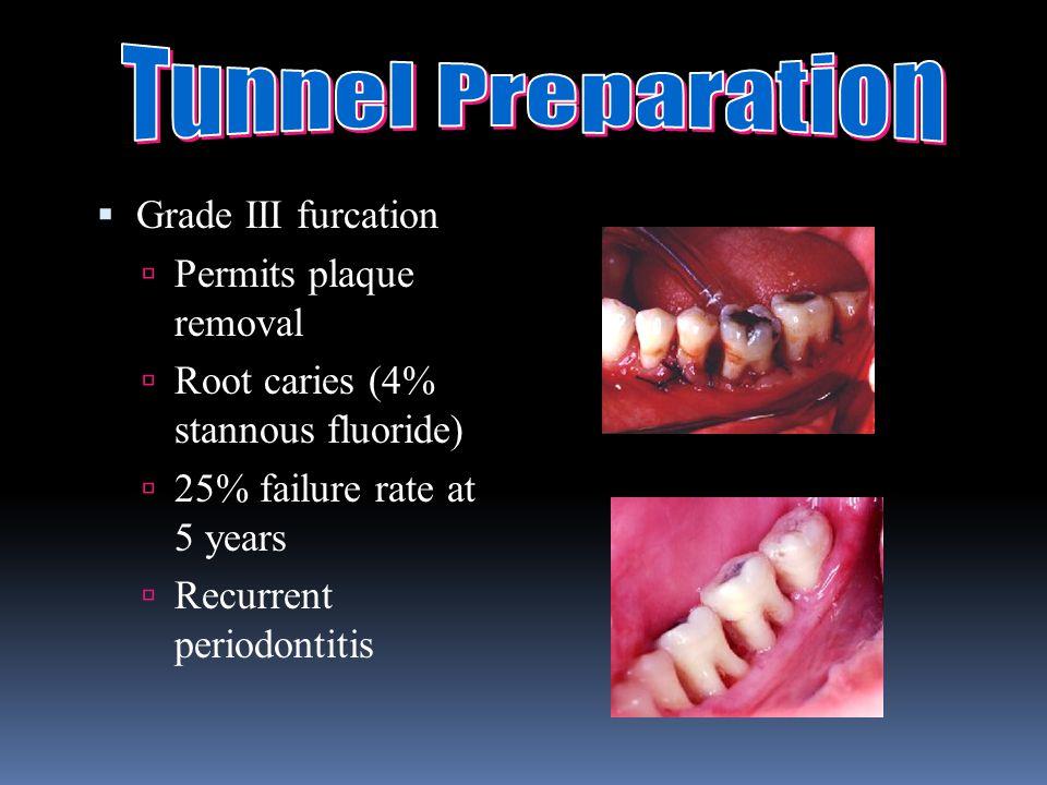 Tunnel Preparation Grade III furcation Permits plaque removal