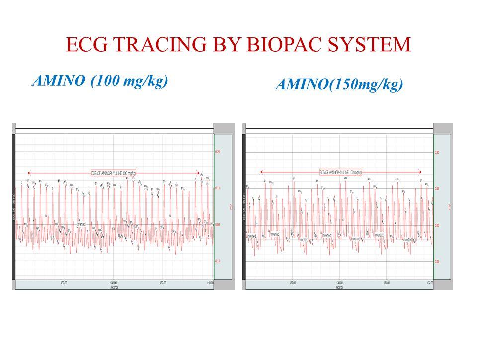 ECG TRACING BY BIOPAC SYSTEM