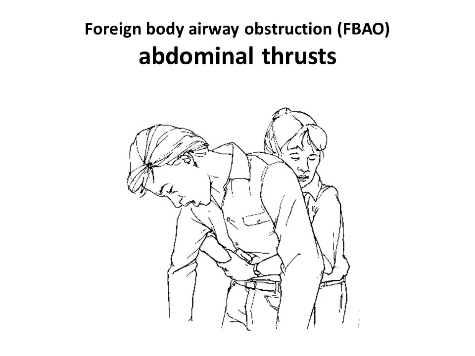 Foreign body airway obstruction (FBAO) abdominal thrusts