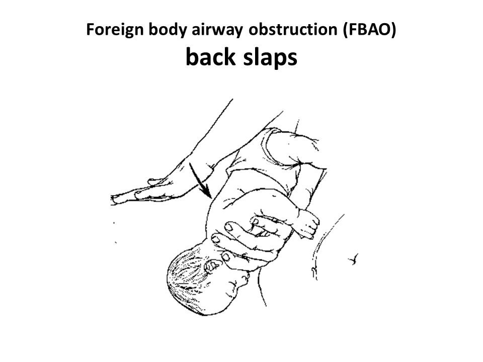 Foreign body airway obstruction (FBAO) back slaps