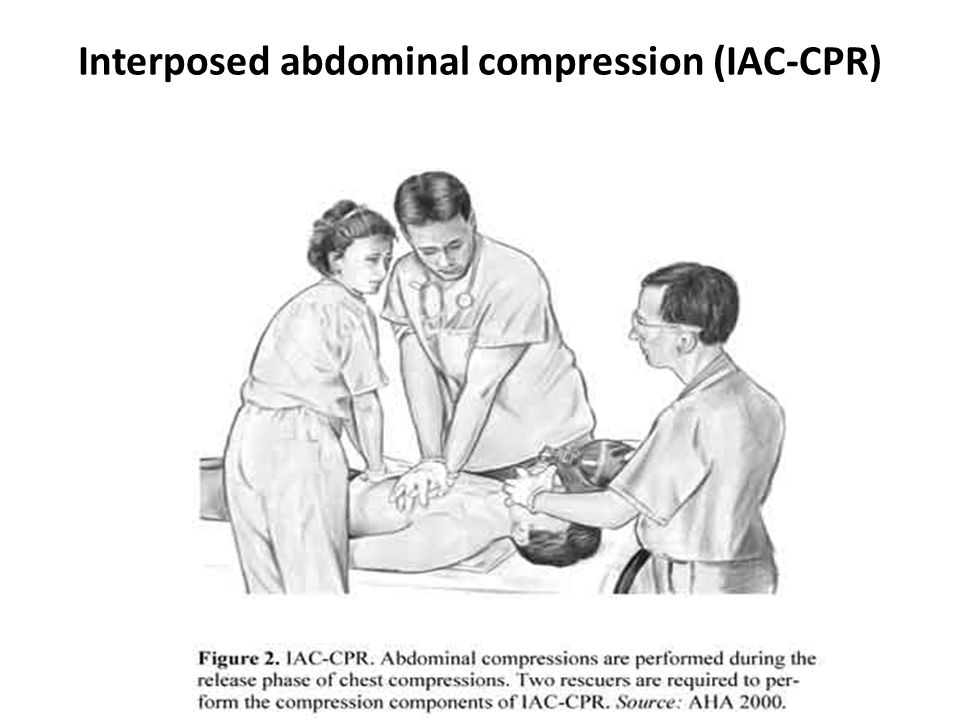 Interposed abdominal compression (IAC-CPR)